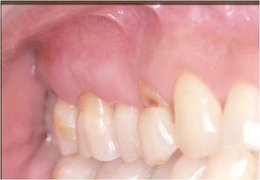 歯周病治療after1.jpg
