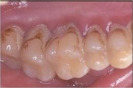 歯周病治療before2.jpg