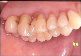 歯周病治療after2.jpg
